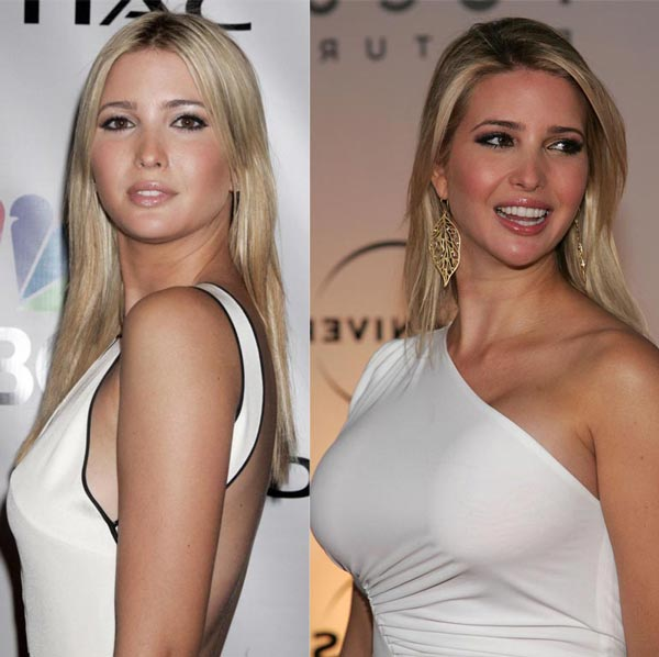 Ivanka Trump – 3.5 Billion